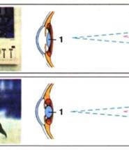 акомодація ока